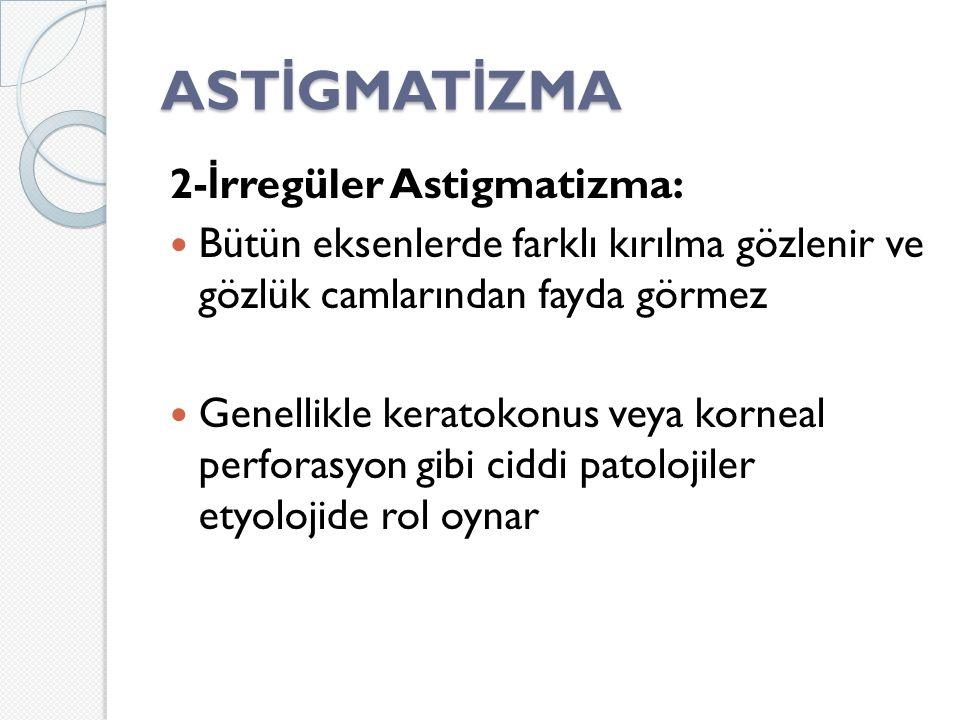 AST İ GMAT İ ZMA 2- İ rregüler Astigmatizma: Bütün eksenlerde farklı kırılma gözlenir ve gözlük camlarından fayda görmez Genellikle keratokonus veya korneal perforasyon gibi ciddi patolojiler etyolojide rol oynar