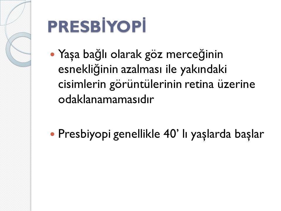 PRESB İ YOP İ Yaşa ba ğ lı olarak göz merce ğ inin esnekli ğ inin azalması ile yakındaki cisimlerin görüntülerinin retina üzerine odaklanamamasıdır Presbiyopi genellikle 40' lı yaşlarda başlar