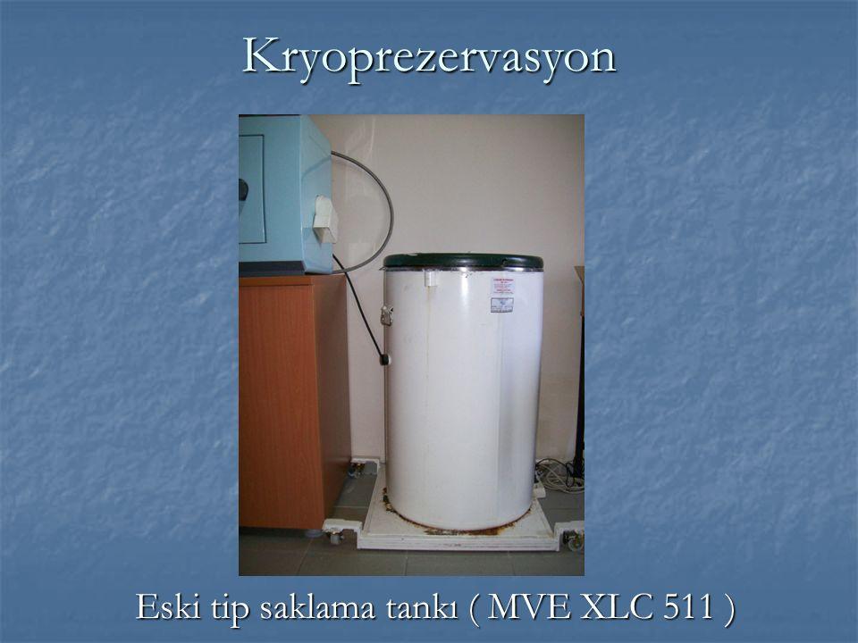 Kryoprezervasyon Eski tip saklama tankı ( MVE XLC 511 )