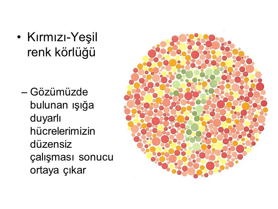 Kırmızı-Yeşil renk körlüğü –Gözümüzde bulunan ışığa duyarlı hücrelerimizin düzensiz çalışması sonucu ortaya çıkar