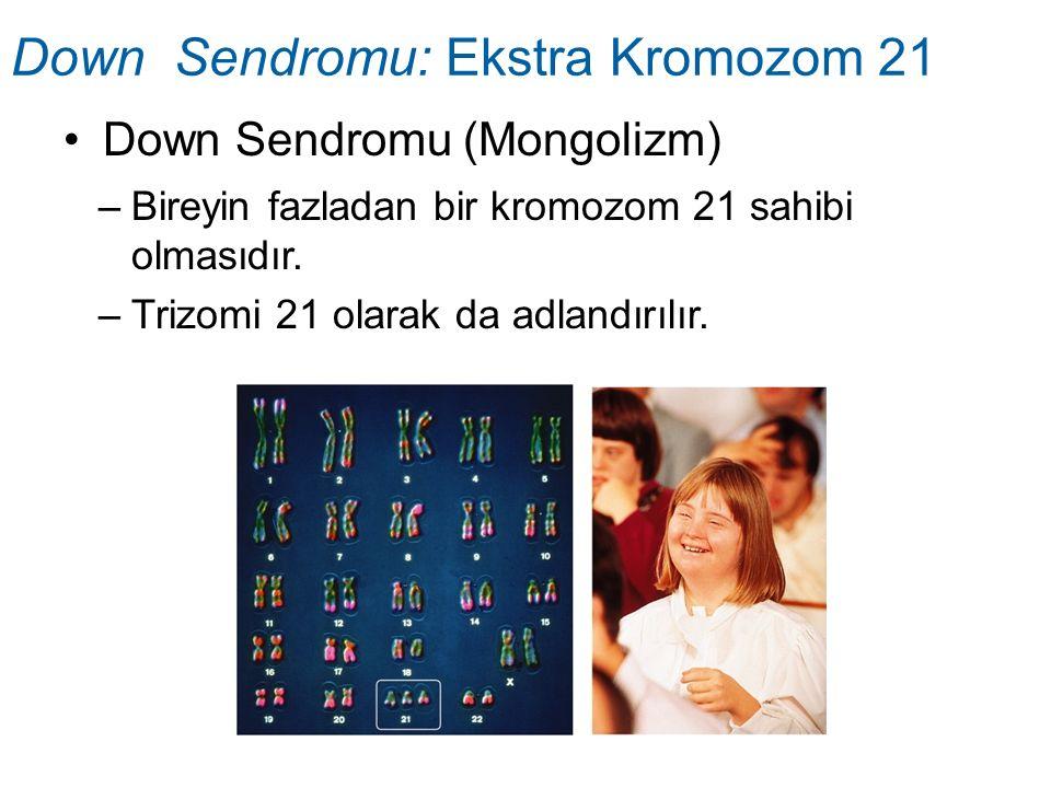 Down Sendromu (Mongolizm) Down Sendromu: Ekstra Kromozom 21 –Bireyin fazladan bir kromozom 21 sahibi olmasıdır. –Trizomi 21 olarak da adlandırılır.
