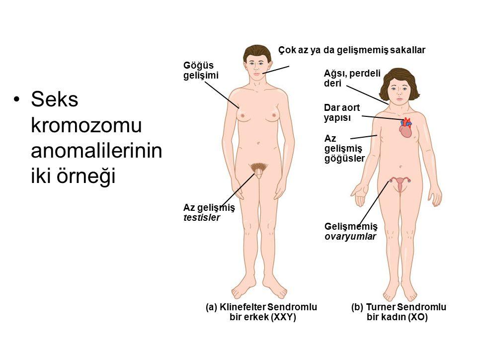Seks kromozomu anomalilerinin iki örneği Göğüs gelişimi Dar aort yapısı (b) Turner Sendromlu bir kadın (XO) Az gelişmiş göğüsler Çok az ya da gelişmem