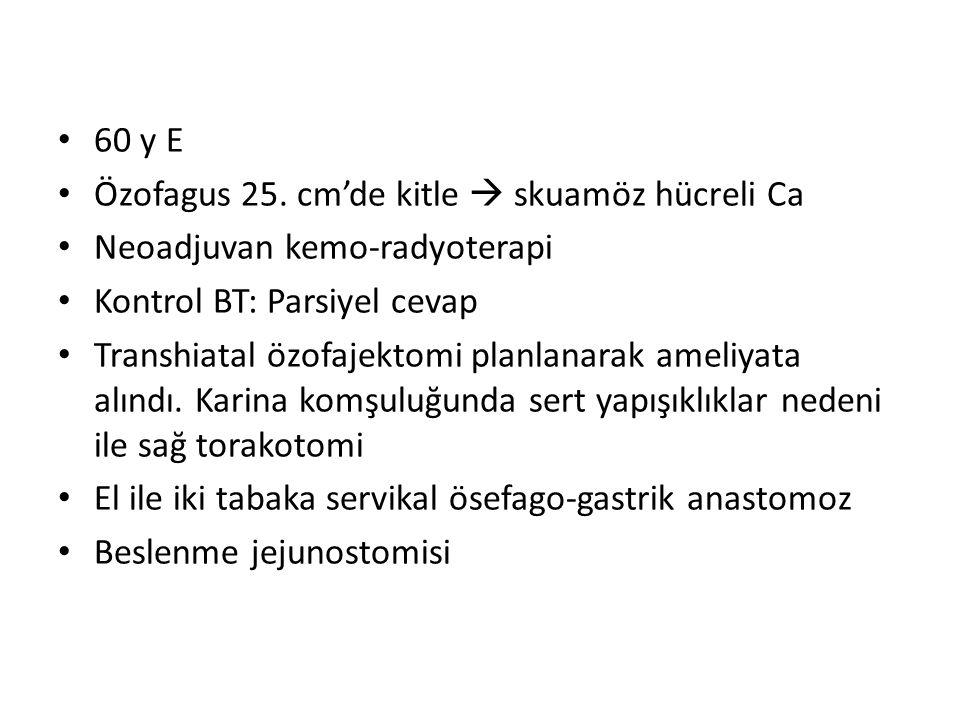 60 y E Özofagus 25.