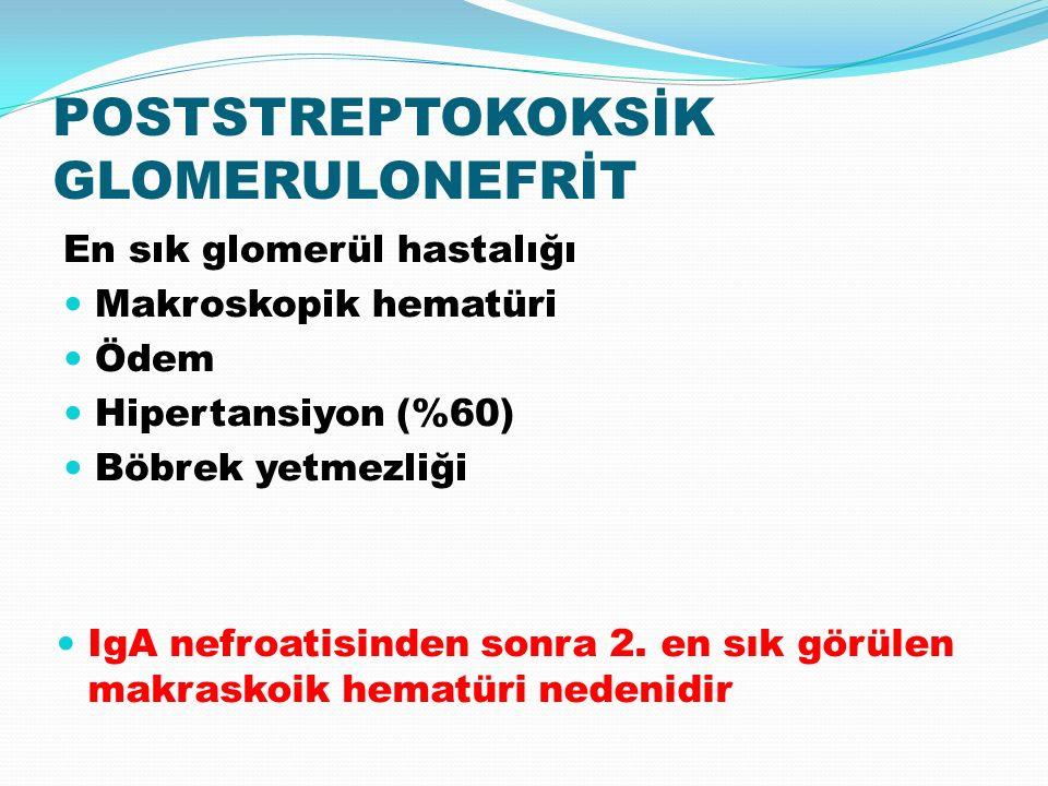 En sık glomerül hastalığı Makroskopik hematüri Ödem Hipertansiyon (%60) Böbrek yetmezliği IgA nefroatisinden sonra 2.