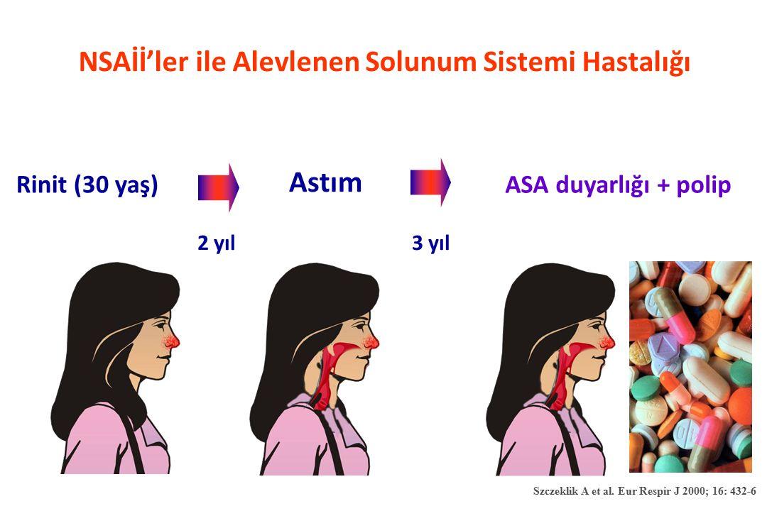 NSAİİ'ler ile Alevlenen Solunum Sistemi Hastalığı Rinit (30 yaş) ASA duyarlığı + polip 2 yıl Astım 3 yıl Szczeklik A et al. Eur Respir J 2000; 16: 432