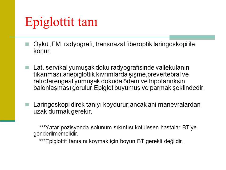 Epiglottit tanı Öykü,FM, radyografi, transnazal fiberoptik laringoskopi ile konur.