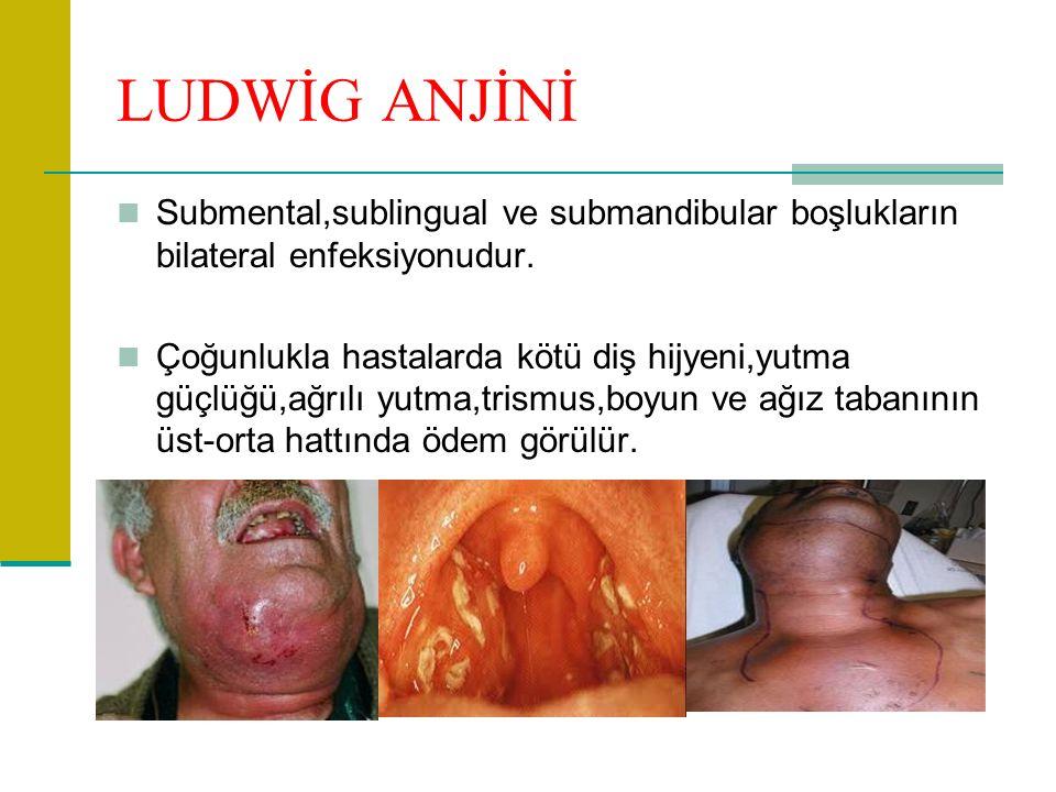 LUDWİG ANJİNİ Submental,sublingual ve submandibular boşlukların bilateral enfeksiyonudur. Çoğunlukla hastalarda kötü diş hijyeni,yutma güçlüğü,ağrılı