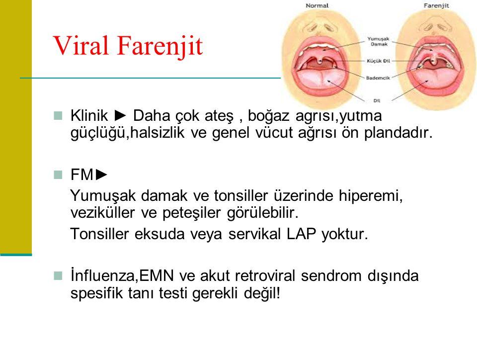 Viral Farenjit Klinik ► Daha çok ateş, boğaz ağrısı,yutma güçlüğü,halsizlik ve genel vücut ağrısı ön plandadır.