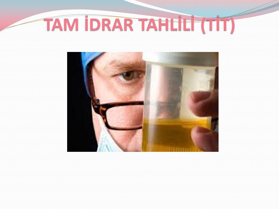 4-İDRARIN PH'I: İdrarın asidifikasyonun göstergesidir.