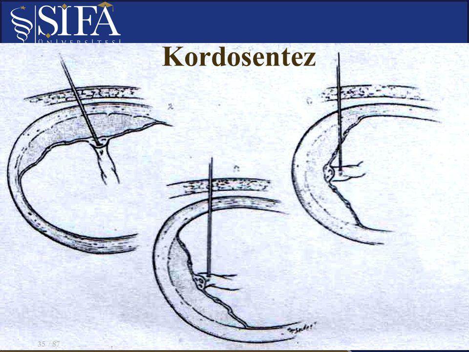Kordosentez / 8735