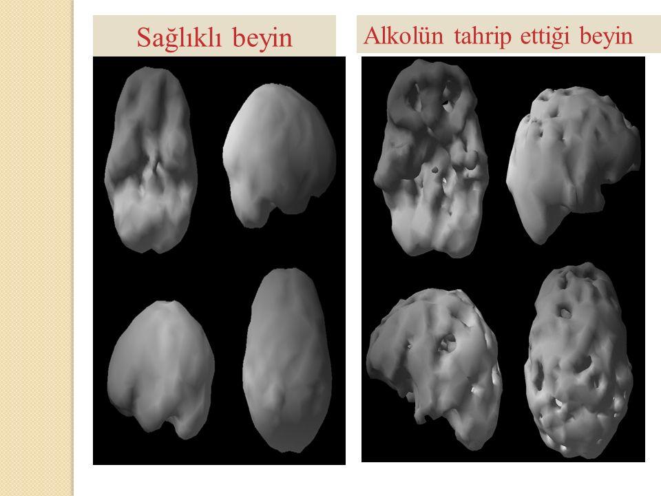 Sağlıklı beyin Alkolün tahrip ettiği beyin