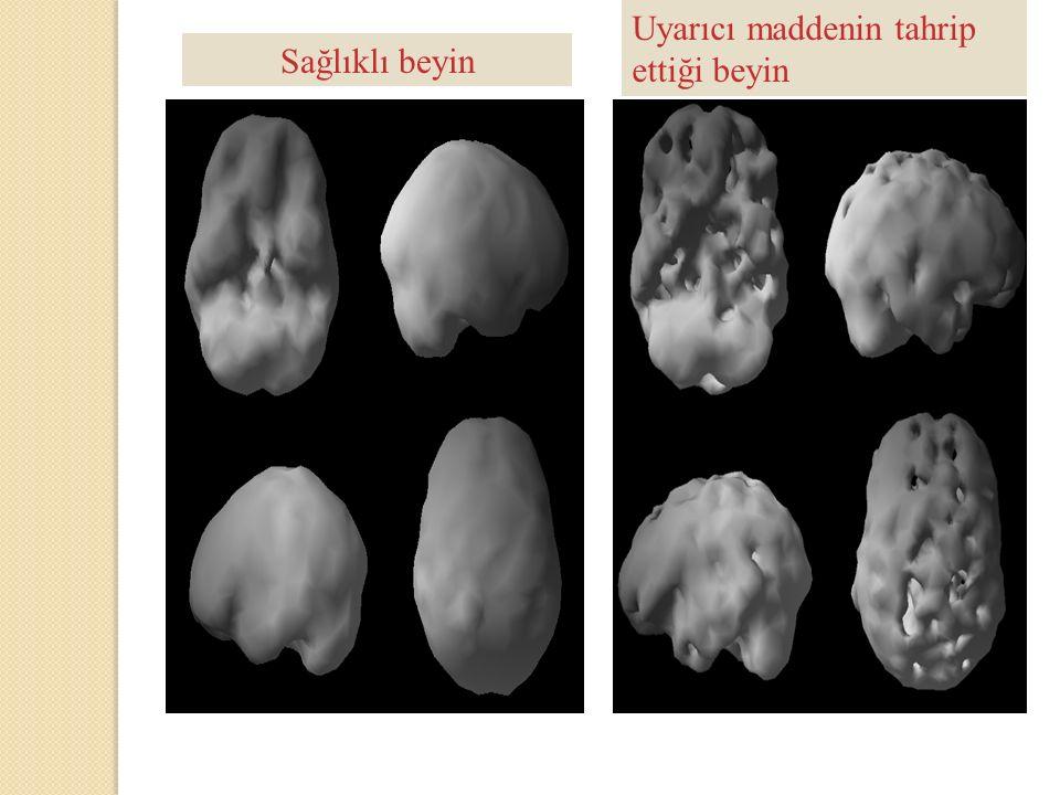 Unchain your brain, Amen, D and Smith D; 2010, Sağlıklı beyin Uyarıcı maddenin tahrip ettiği beyin