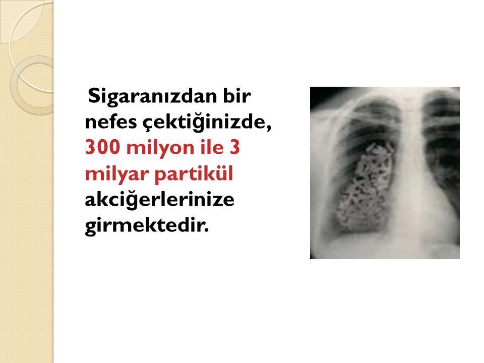 Sigaranızdan bir nefes çekti ğ inizde, 300 milyon ile 3 milyar partikül akci ğ erlerinize girmektedir.