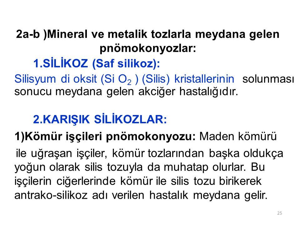 2a-b )Mineral ve metalik tozlarla meydana gelen pnömokonyozlar: 1.SİLİKOZ (Saf silikoz): Silisyum di oksit (Si O 2 ) (Silis) kristallerinin solunması