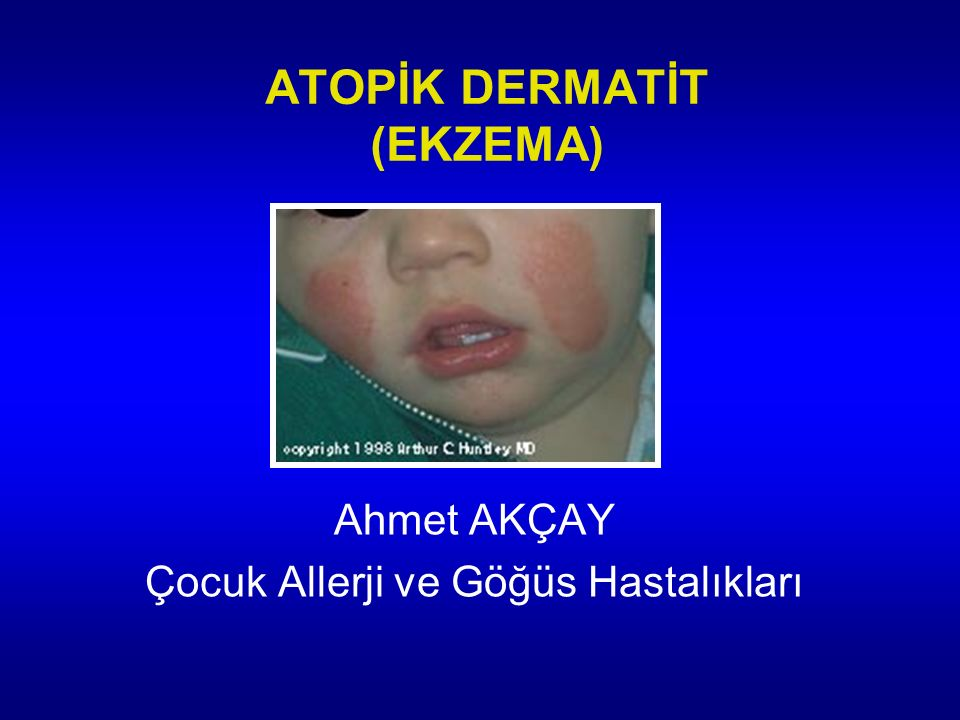 Çocuklarda yaygın olarak artan kronik inflamatuar deri hastalığına denir Ailede atopik hastalık öyküsü vardır %85 Ig E seviyesi yüksektir Deri testi pozitiftir AD'in alt grubu vardır ki allerji yoktur