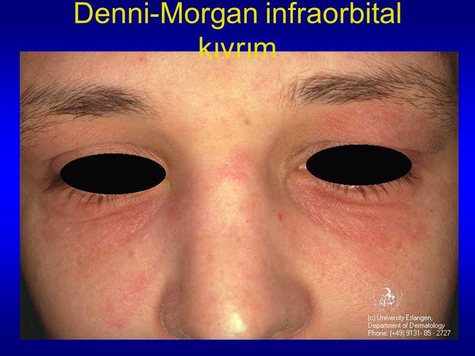 Denni-Morgan infraorbital kıvrım