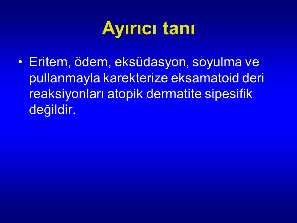 Ayırıcı tanı Eritem, ödem, eksüdasyon, soyulma ve pullanmayla karekterize eksamatoid deri reaksiyonları atopik dermatite sipesifik değildir.