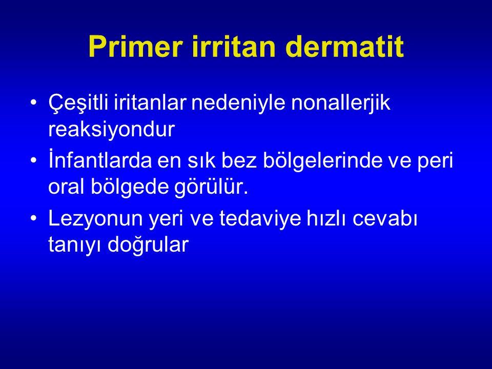 Primer irritan dermatit Çeşitli iritanlar nedeniyle nonallerjik reaksiyondur İnfantlarda en sık bez bölgelerinde ve peri oral bölgede görülür.