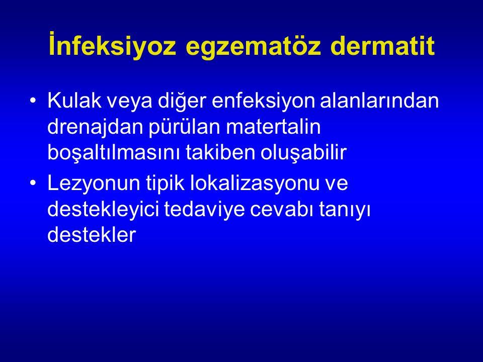 İnfeksiyoz egzematöz dermatit Kulak veya diğer enfeksiyon alanlarından drenajdan pürülan matertalin boşaltılmasını takiben oluşabilir Lezyonun tipik lokalizasyonu ve destekleyici tedaviye cevabı tanıyı destekler