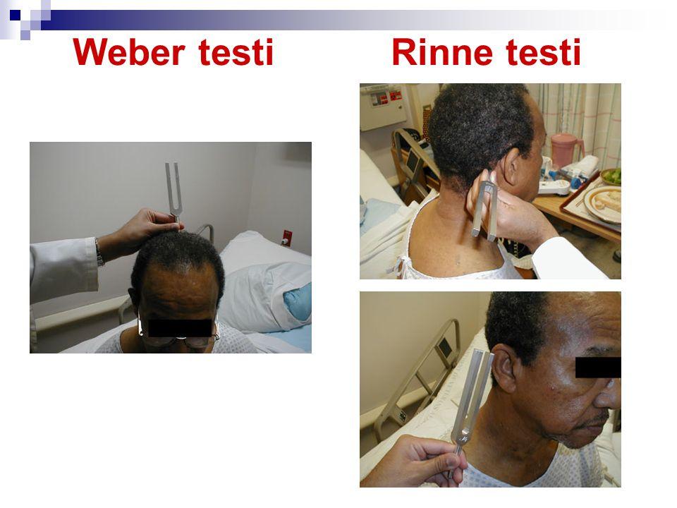 Weber testi Rinne testi