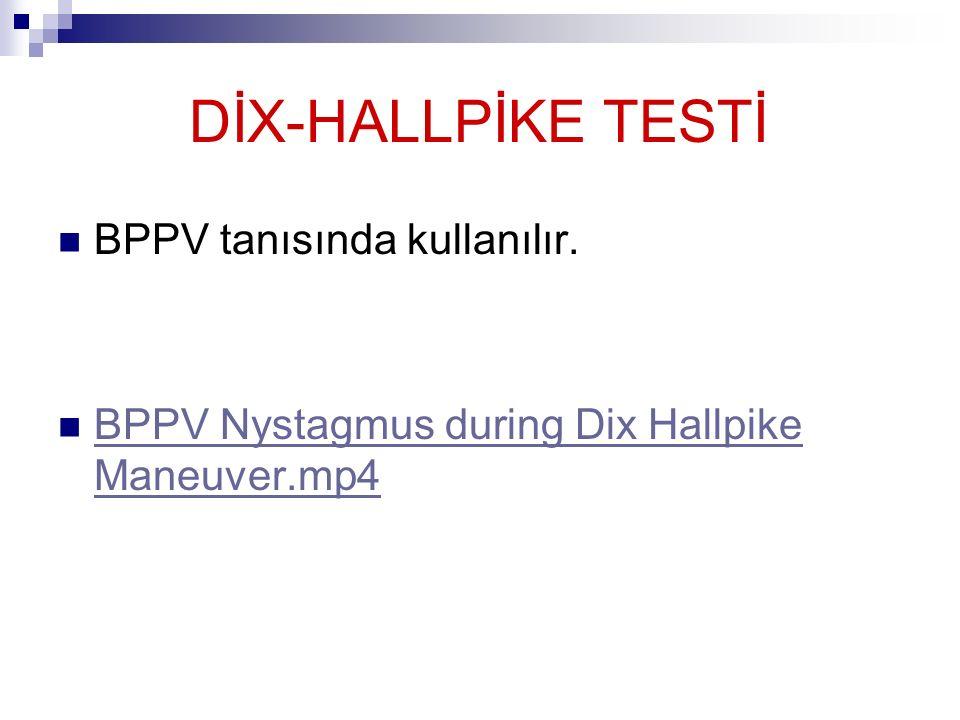 DİX-HALLPİKE TESTİ BPPV tanısında kullanılır. BPPV Nystagmus during Dix Hallpike Maneuver.mp4 BPPV Nystagmus during Dix Hallpike Maneuver.mp4