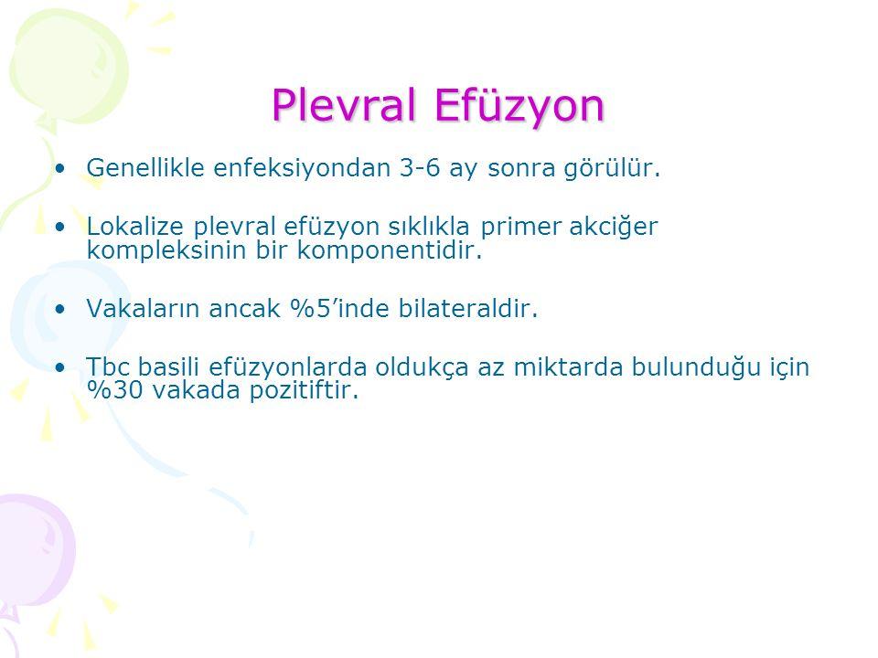 Plevral Efüzyon Genellikle enfeksiyondan 3-6 ay sonra görülür.