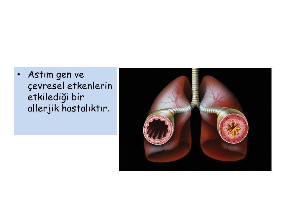Astım gen ve çevresel etkenlerin etkilediği bir allerjik hastalıktır.