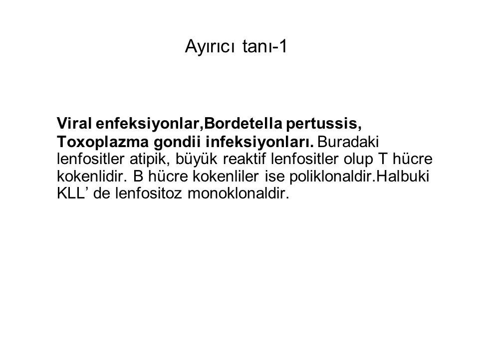 Viral enfeksiyonlar,Bordetella pertussis, Toxoplazma gondii infeksiyonları. Buradaki lenfositler atipik, büyük reaktif lenfositler olup T hücre kokenl