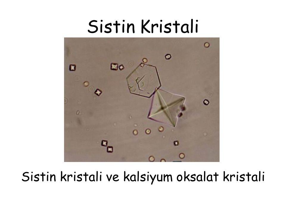Sistin Kristali Sistin kristali ve kalsiyum oksalat kristali