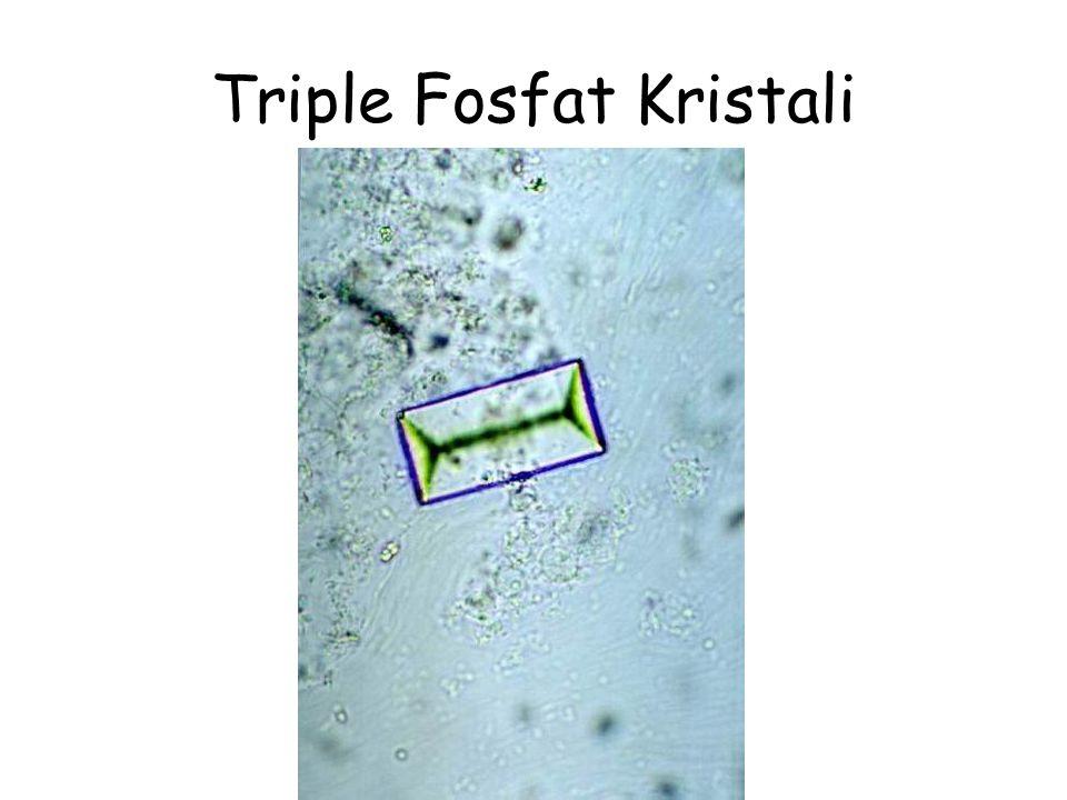 Triple Fosfat Kristali
