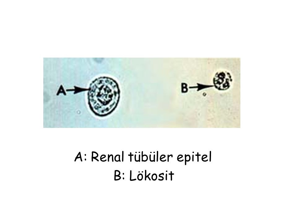 A: Renal tübüler epitel B: Lökosit