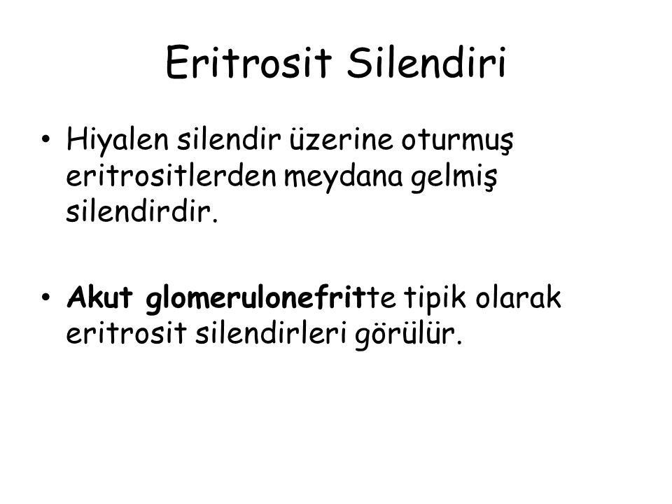 Eritrosit Silendiri Hiyalen silendir üzerine oturmuş eritrositlerden meydana gelmiş silendirdir. Akut glomerulonefritte tipik olarak eritrosit silendi