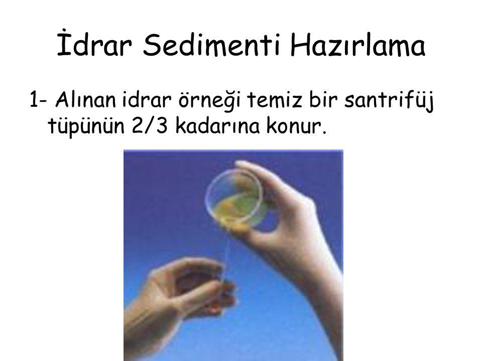 İdrar Sedimenti Hazırlama 1- Alınan idrar örneği temiz bir santrifüj tüpünün 2/3 kadarına konur.
