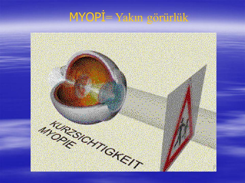 MYOPİ = Yakın görürlük
