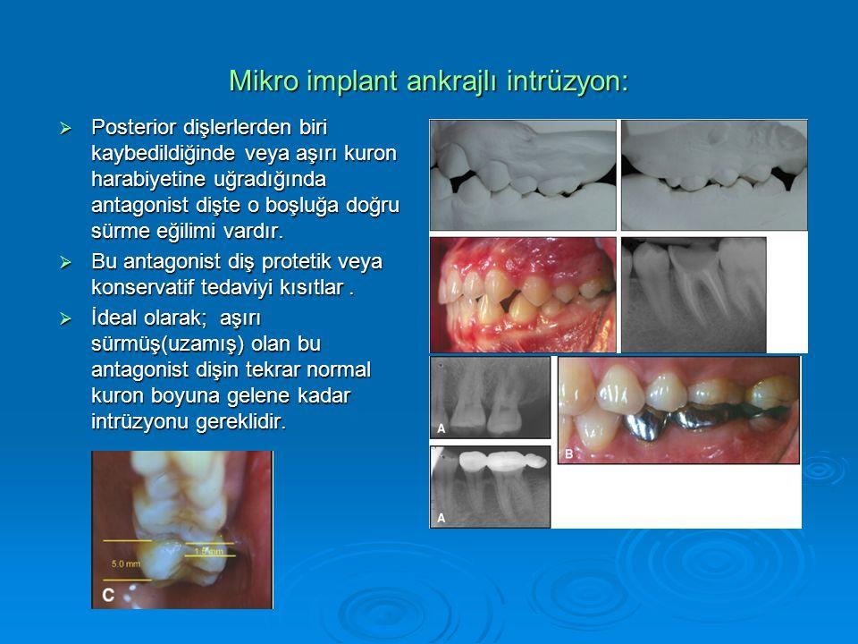 Mikro implant ankrajlı intrüzyon:  Posterior dişlerlerden biri kaybedildiğinde veya aşırı kuron harabiyetine uğradığında antagonist dişte o boşluğa doğru sürme eğilimi vardır.