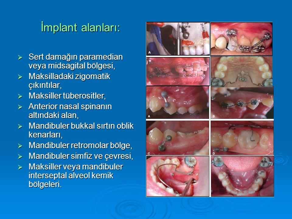 İmplant alanları:  Sert damağın paramedian veya midsagital bölgesi,  Maksilladaki zigomatik çıkıntılar,  Maksiller tüberositler,  Anterior nasal spinanın altındaki alan,  Mandibuler bukkal sırtın oblik kenarları,  Mandibuler retromolar bölge,  Mandibuler simfiz ve çevresi,  Maksiller veya mandibuler interseptal alveol kemik bölgeleri.