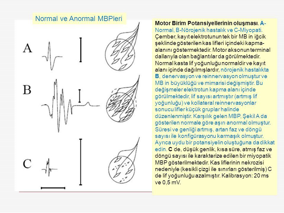 Motor Birim Potansiyellerinin oluşması. A- Normal, B-Nörojenik hastalık ve C-Miyopati.