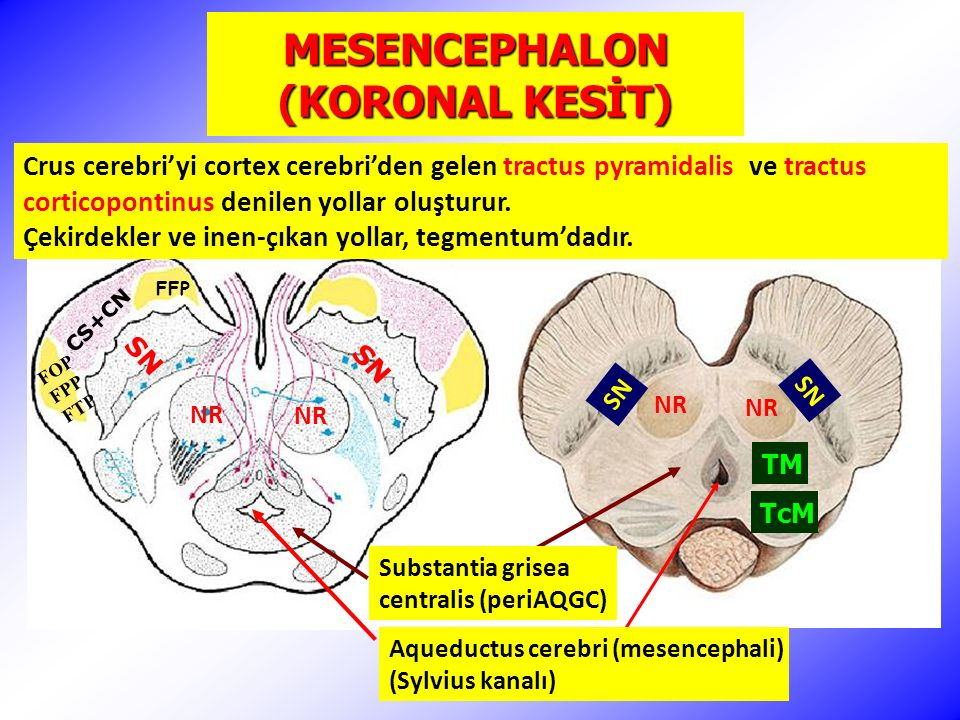 MESENCEPHALON (KORONAL KESİT) NR SN FFP CS+CN FOP FPP FTP Aqueductus cerebri (mesencephali) (Sylvius kanalı) Substantia grisea centralis (periAQGC) SN TM TcM Crus cerebri'yi cortex cerebri'den gelen tractus pyramidalis ve tractus corticopontinus denilen yollar oluşturur.