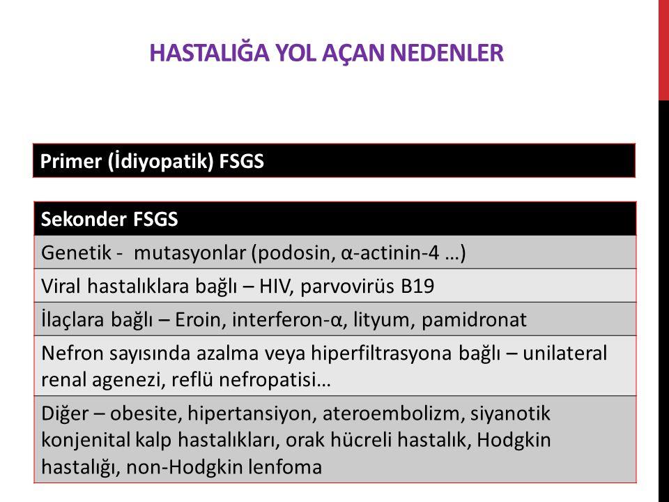 HASTALIĞA YOL AÇAN NEDENLER Primer (İdiyopatik) FSGS Sekonder FSGS Genetik - mutasyonlar (podosin, α-actinin-4 …) Viral hastalıklara bağlı – HIV, parvovirüs B19 İlaçlara bağlı – Eroin, interferon-α, lityum, pamidronat Nefron sayısında azalma veya hiperfiltrasyona bağlı – unilateral renal agenezi, reflü nefropatisi… Diğer – obesite, hipertansiyon, ateroembolizm, siyanotik konjenital kalp hastalıkları, orak hücreli hastalık, Hodgkin hastalığı, non-Hodgkin lenfoma