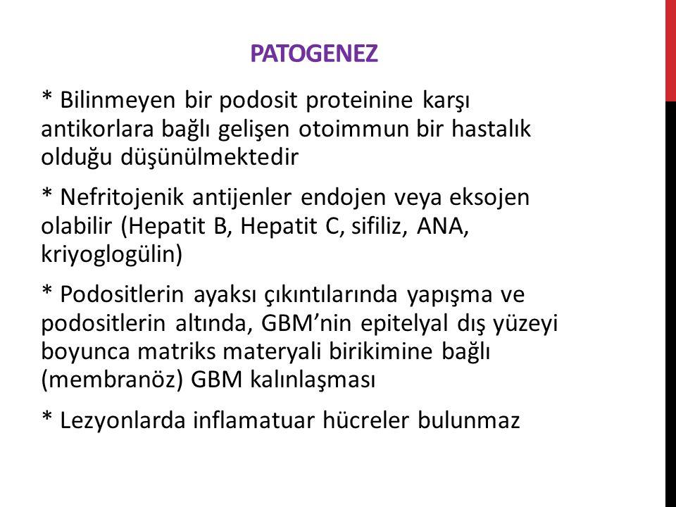 PATOGENEZ * Bilinmeyen bir podosit proteinine karşı antikorlara bağlı gelişen otoimmun bir hastalık olduğu düşünülmektedir * Nefritojenik antijenler endojen veya eksojen olabilir (Hepatit B, Hepatit C, sifiliz, ANA, kriyoglogülin) * Podositlerin ayaksı çıkıntılarında yapışma ve podositlerin altında, GBM'nin epitelyal dış yüzeyi boyunca matriks materyali birikimine bağlı (membranöz) GBM kalınlaşması * Lezyonlarda inflamatuar hücreler bulunmaz