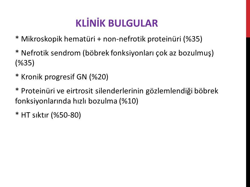 KLİNİK BULGULAR * Mikroskopik hematüri + non-nefrotik proteinüri (%35) * Nefrotik sendrom (böbrek fonksiyonları çok az bozulmuş) (%35) * Kronik progresif GN (%20) * Proteinüri ve eirtrosit silenderlerinin gözlemlendiği böbrek fonksiyonlarında hızlı bozulma (%10) * HT sıktır (%50-80)