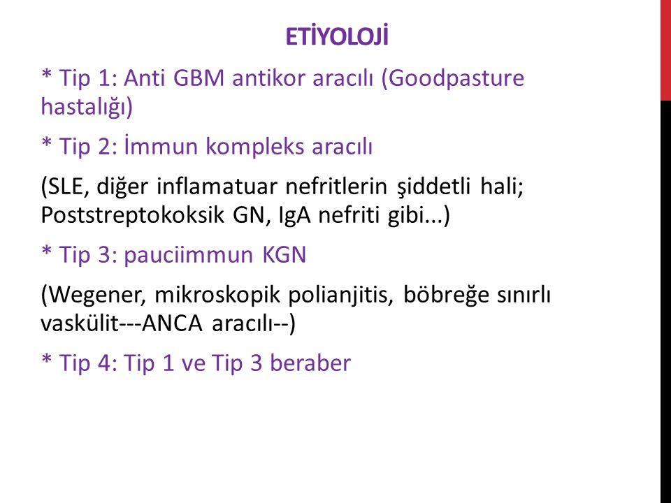 ETİYOLOJİ * Tip 1: Anti GBM antikor aracılı (Goodpasture hastalığı) * Tip 2: İmmun kompleks aracılı (SLE, diğer inflamatuar nefritlerin şiddetli hali; Poststreptokoksik GN, IgA nefriti gibi...) * Tip 3: pauciimmun KGN (Wegener, mikroskopik polianjitis, böbreğe sınırlı vaskülit---ANCA aracılı--) * Tip 4: Tip 1 ve Tip 3 beraber