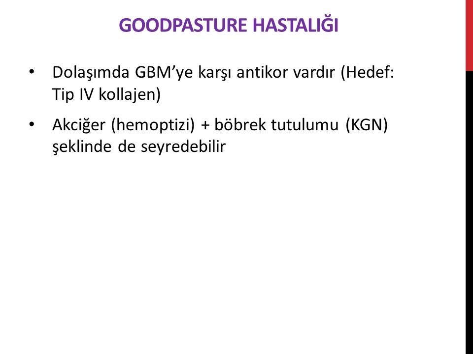 GOODPASTURE HASTALIĞI Dolaşımda GBM'ye karşı antikor vardır (Hedef: Tip IV kollajen) Akciğer (hemoptizi) + böbrek tutulumu (KGN) şeklinde de seyredebilir