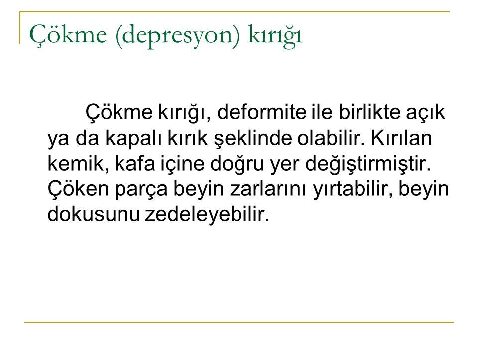 Çökme (depresyon) kırığı Çökme kırığı, deformite ile birlikte açık ya da kapalı kırık şeklinde olabilir.