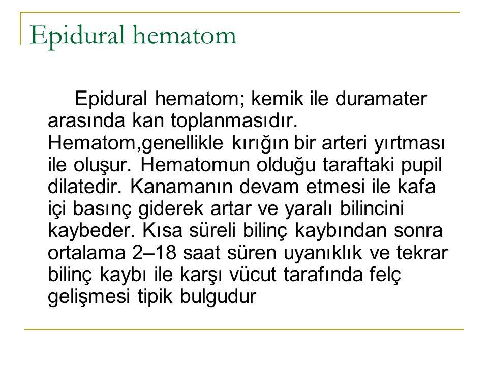 Epidural hematom Epidural hematom; kemik ile duramater arasında kan toplanmasıdır.