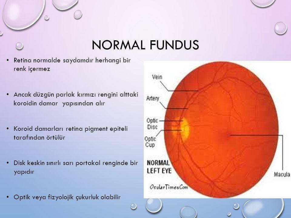 NORMAL FUNDUS Retina normalde saydamdır herhangi bir renk içermez Ancak düzgün parlak kırmızı rengini alttaki koroidin damar yapısından alır Koroid da