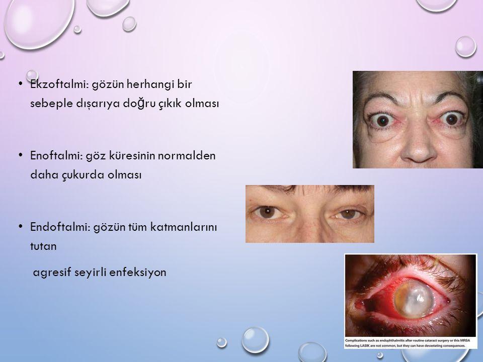 Ekzoftalmi: gözün herhangi bir sebeple dışarıya do ğ ru çıkık olması Enoftalmi: göz küresinin normalden daha çukurda olması Endoftalmi: gözün tüm katm