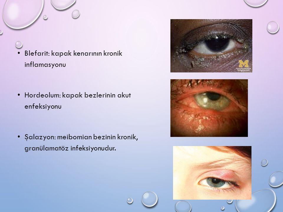 Blefarit: kapak kenarının kronik inflamasyonu Hordeolum: kapak bezlerinin akut enfeksiyonu Şalazyon: meibomian bezinin kronik, granülamatöz infeksiyon
