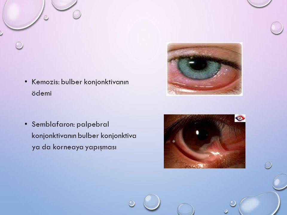 Kemozis: bulber konjonktivanın ödemi Semblafaron: palpebral konjonktivanın bulber konjonktiva ya da korneaya yapışması