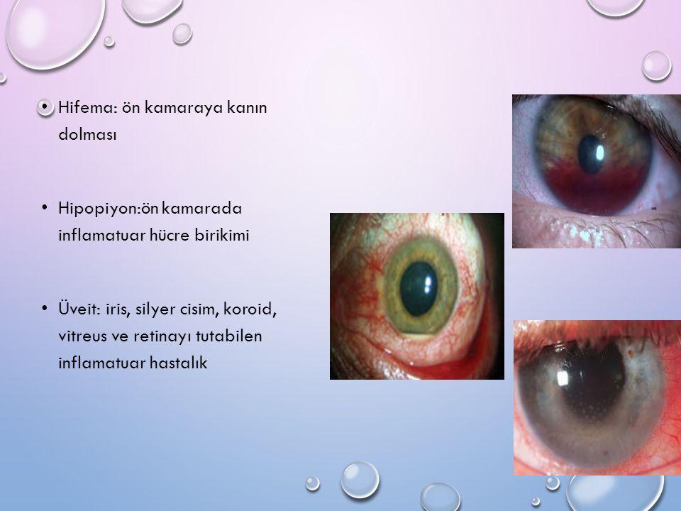 Hifema: ön kamaraya kanın dolması Hipopiyon:ön kamarada inflamatuar hücre birikimi Üveit: iris, silyer cisim, koroid, vitreus ve retinayı tutabilen in